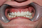 Case 5 - Temporary crowns placed using matrix made on diagnostic wax up model