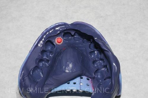 Implant impression