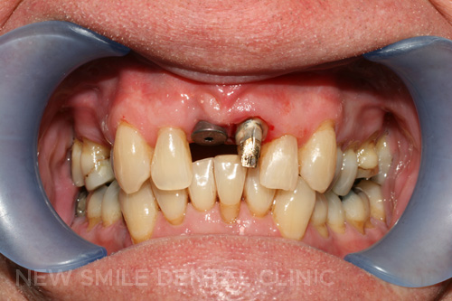 Existing crown removed & tooth re-prepared for new crown