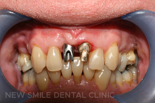 Implant abutment in position