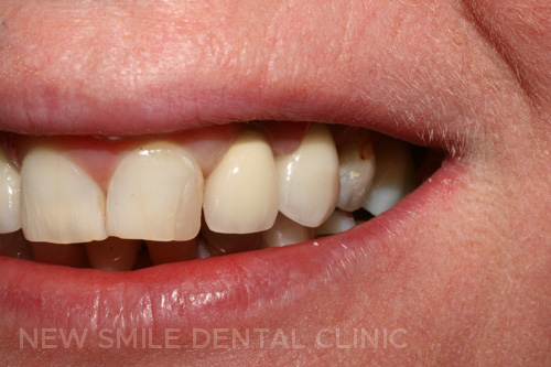 Two implant retained crowns
