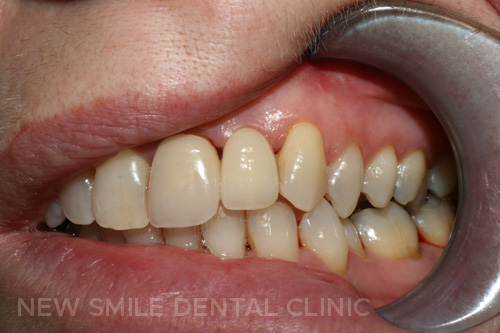 Dental Implants - after