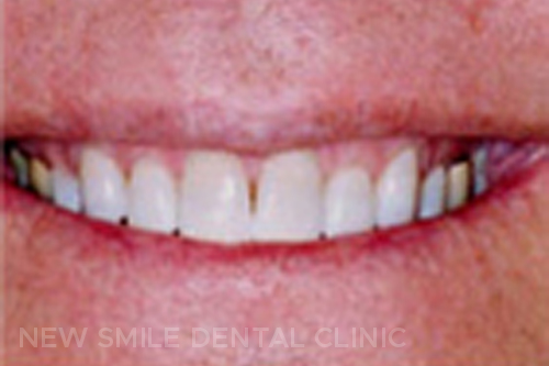 Teeth Whitening - after