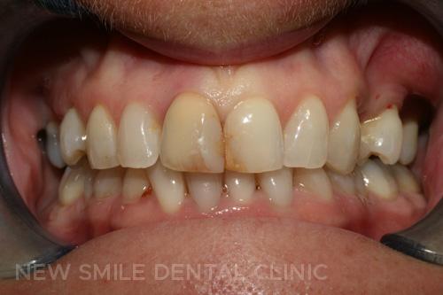 Smile Design - before