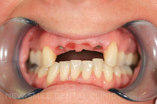 Dental Implants - before
