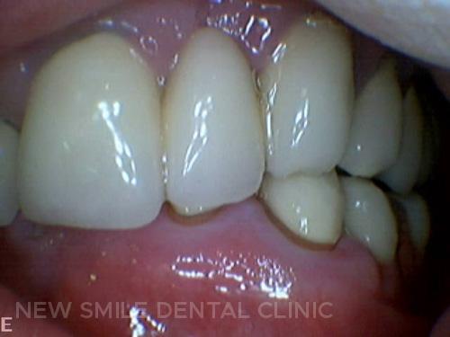Occlusal problems in teeth