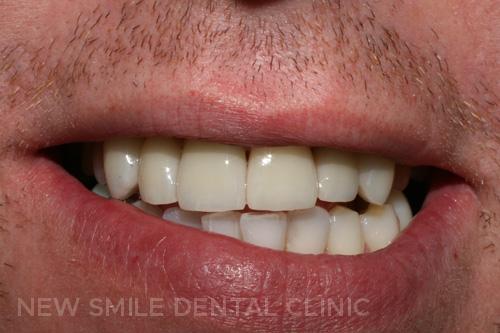 Smile Design - after